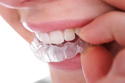 <p> Relaxation Rail Overlay for Grinding Bruxism 2567 </p>